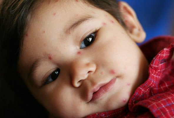 chicken pox shingles difference baby