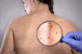 severe symptoms shingles